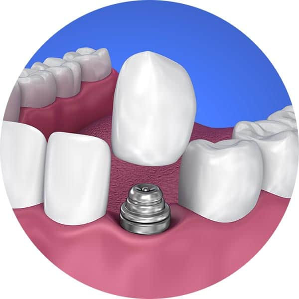 Dental crown going on to implant image