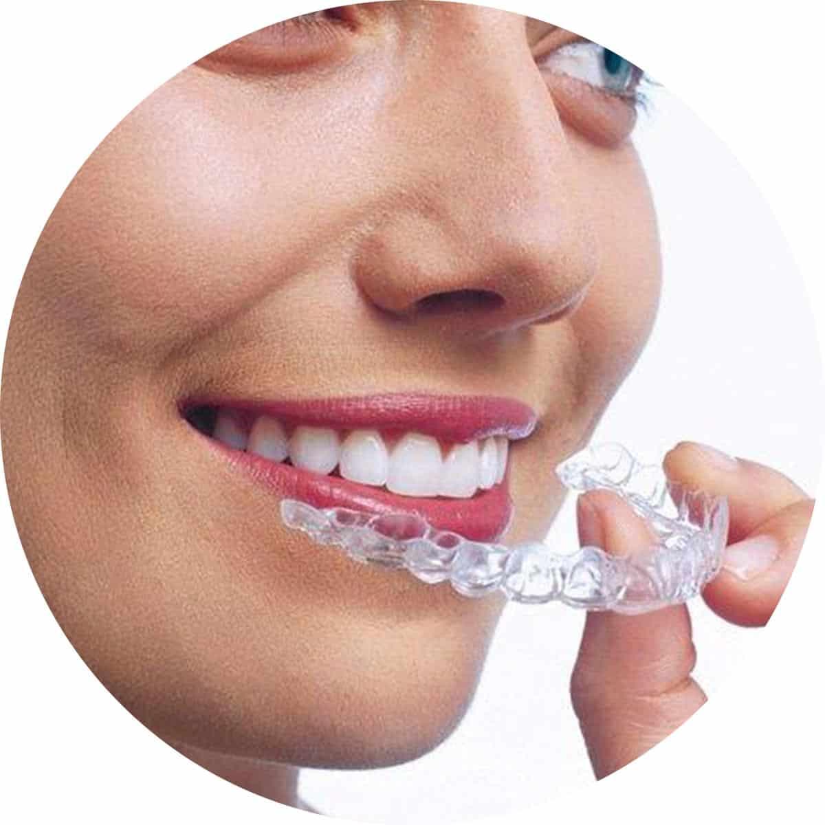 Invisalign Clear Aligner Dental Care