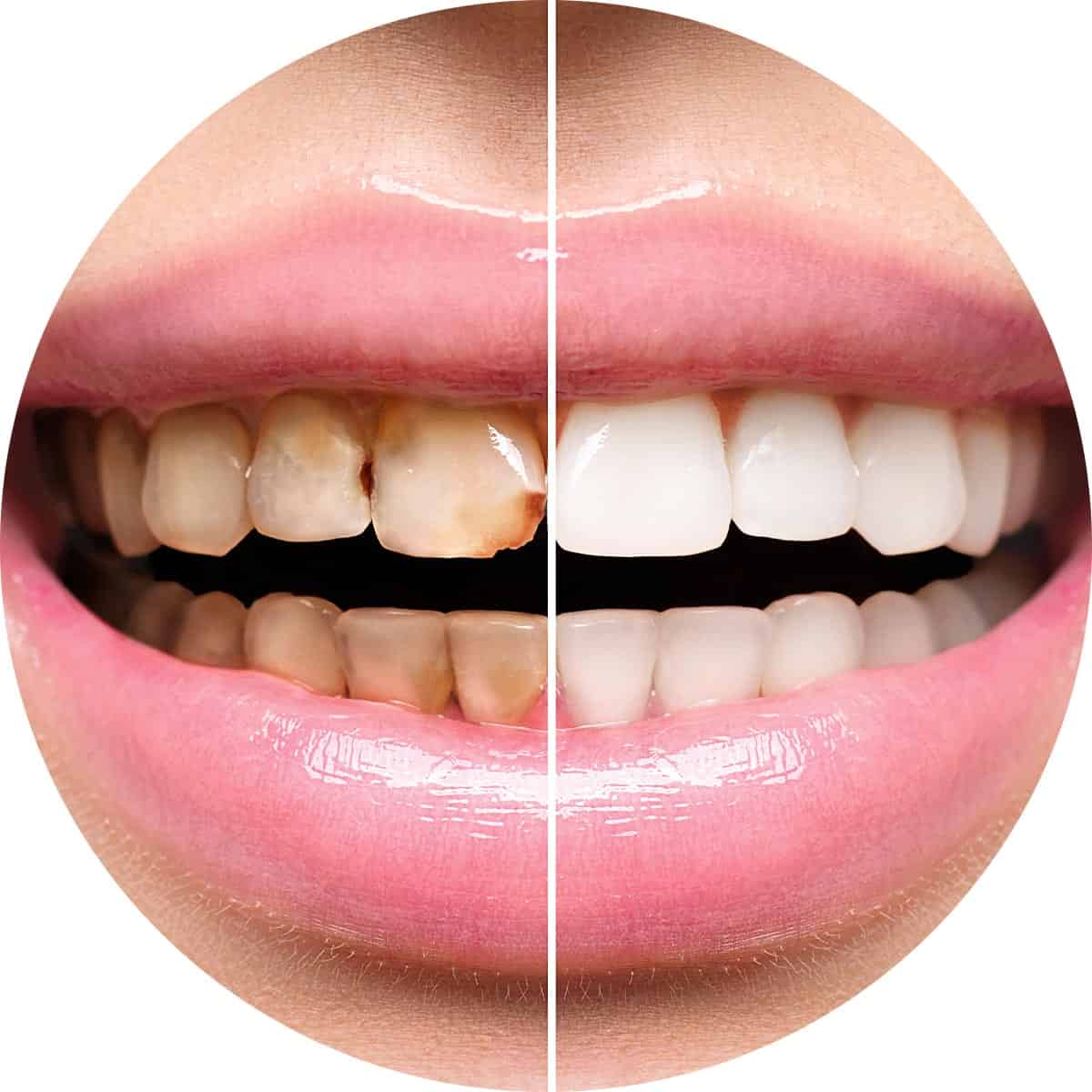 Before and after professional teeth whitening image