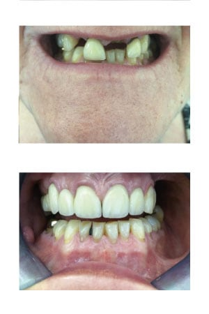Crowns and Bridges Dental Treatment