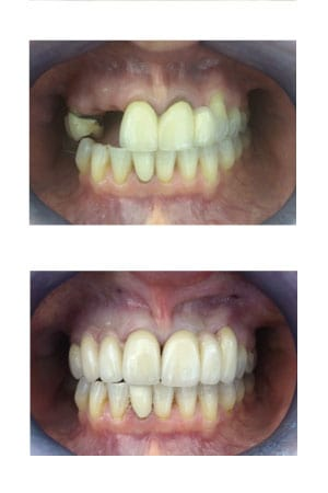 Crown and bridge treatment case study image