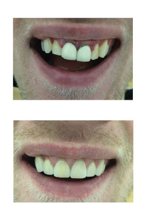 Crowns and bridges treatment results at Holly Dental Practice