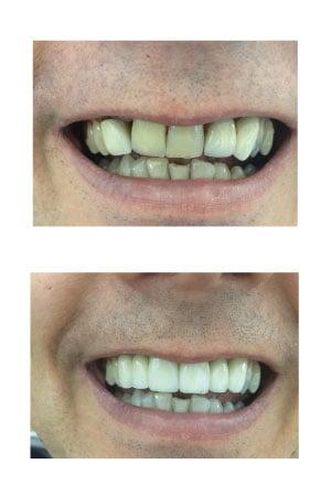 Crowns & bridges at Holly Dental Practice