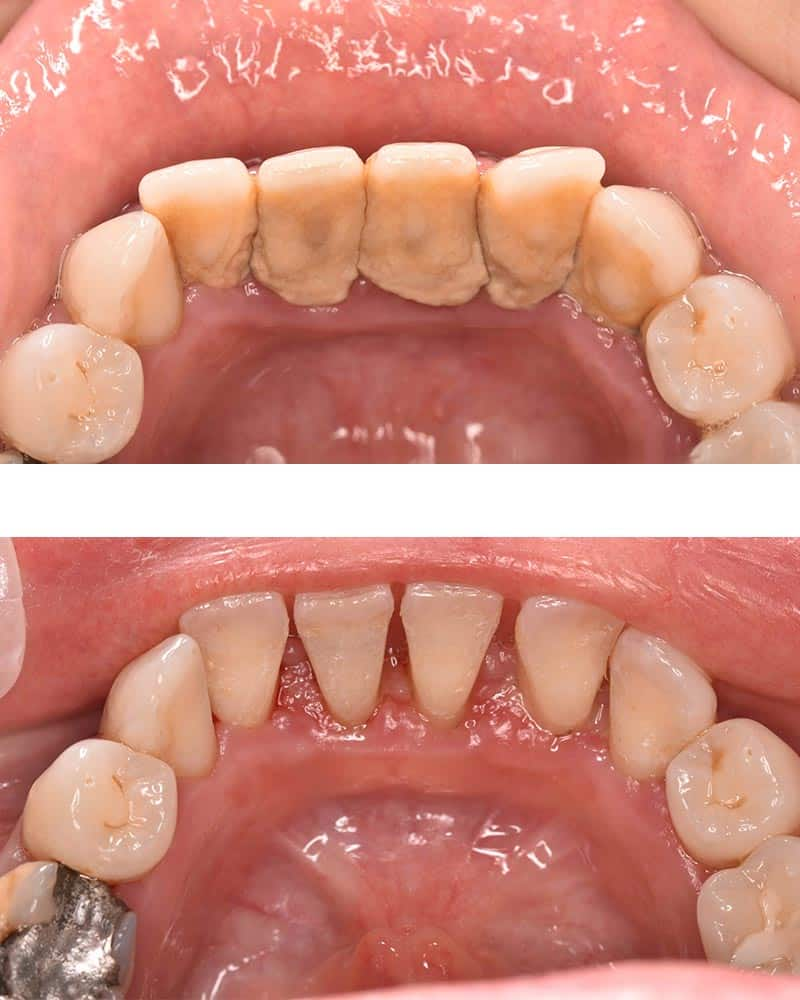 Perio treatment as part of our dental hygiene services in Preston