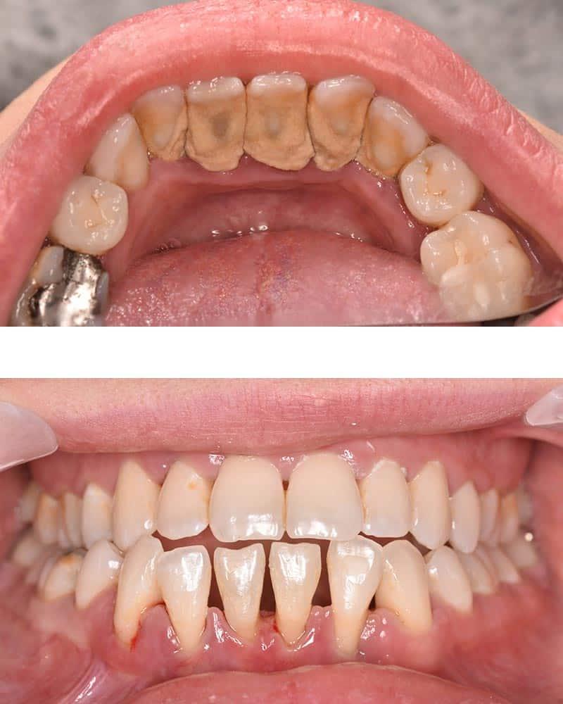 Case study - dental hygiene in Preston