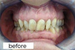 Before invisaligh teeth straightening treatment in Preston