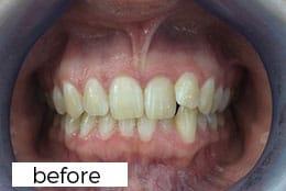 before invisalign teeth straightening