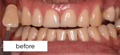 before tooth whitening treatment in Preston