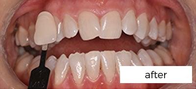 Teeth Whitening Treatment Preston