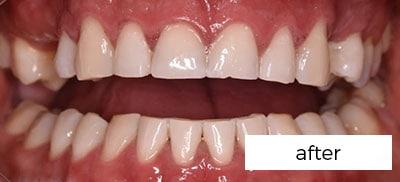 after teeth bleaching treatment in Preston