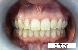 after invisalign treatment photograph
