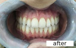after teeth straightening with invisalign in Preston