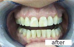 After Invisalign treatment in Preston