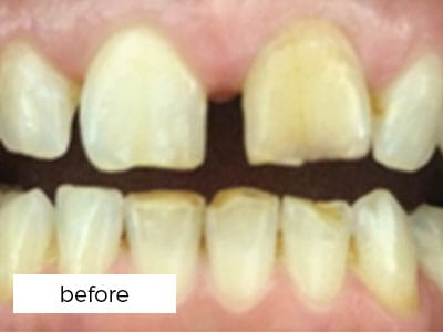 Dental Veneers Before Treatment