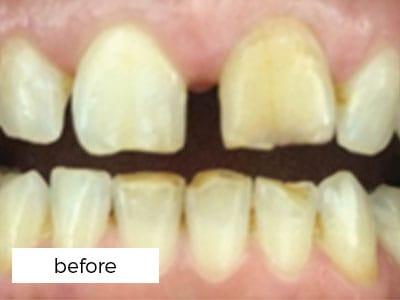 before photograph of teeth prior to veneers