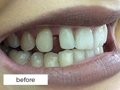 gaps in teeth prior to veneers treatment in Preston