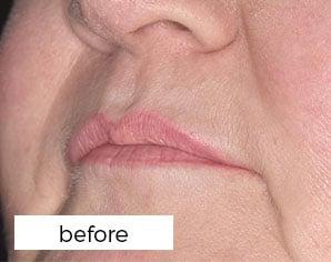 before facial treatment - lips