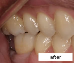 after dental implant treatments