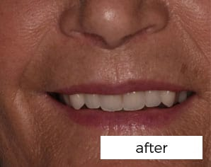 Facial Aesthetics Treatment
