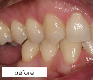 Dental Implants Treatment Preston