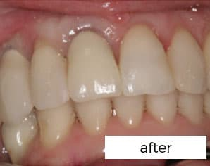 after treatment with dental implants in preston treatment