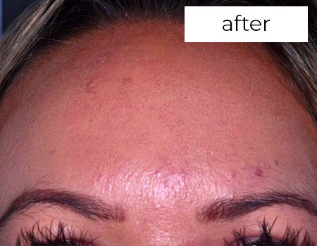 after treatmentFacial Aesthetics Treatment