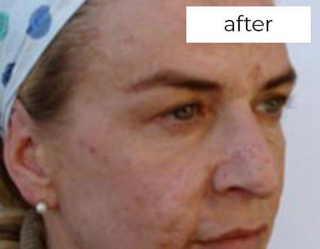 after facial aesthetics treatment