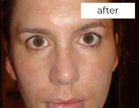 Facial Rejuvenation Treatment