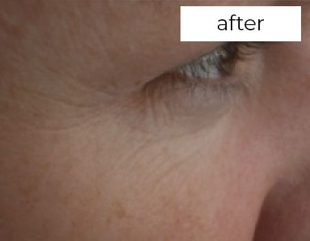 after wrinkle treatment photograph