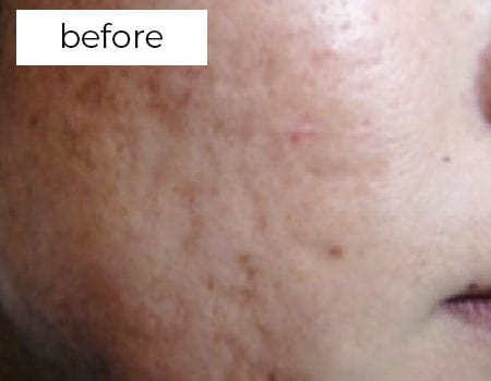 facial rejuvenation treatments before photo