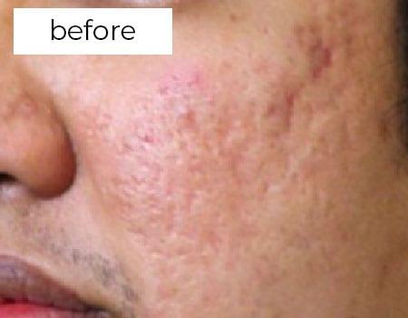 before facial treatment