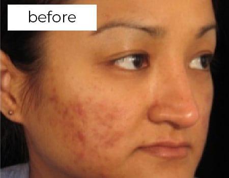 before facial aesthetic treatment