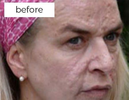 before facial rejuvenation treatment