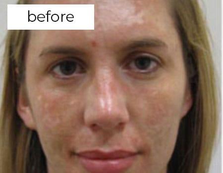 skin before treatment photo