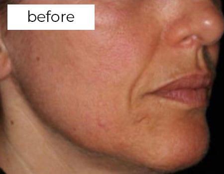 before treatment photo