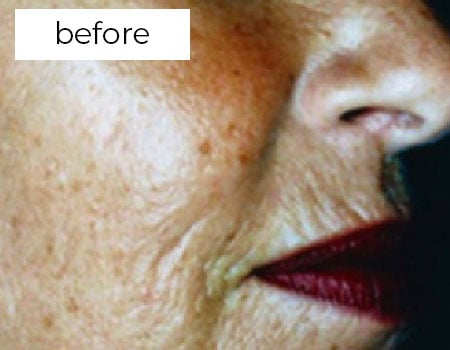 before wrinkle reduction treatment