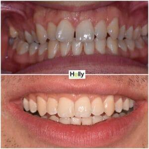 crooked teeth preston