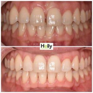 gappy teeth preston