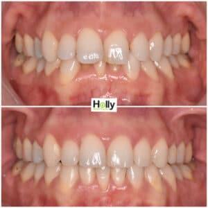 overjet teeth preston